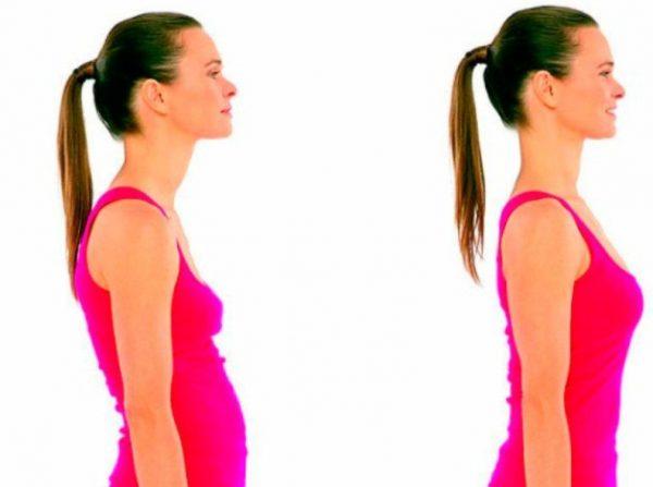 При нарушении осанки появляется торчащий вперед живот-арбуз
