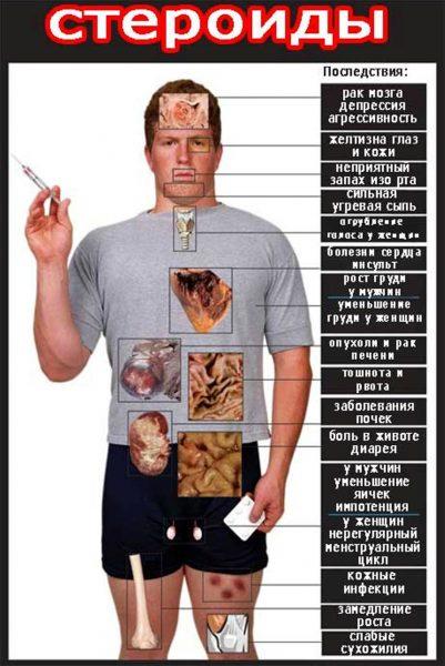 Метан для мышц: побочные эффекты
